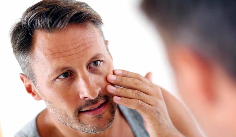 La blefaroplastia en los hombres