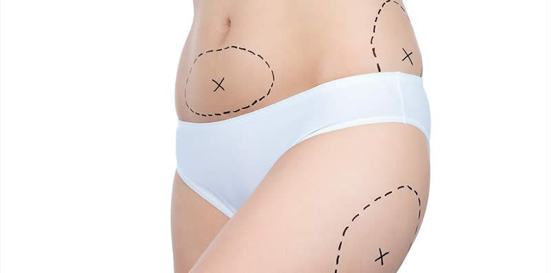 Mitos y verdades de la liposucción