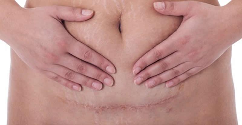 Tipos de cicatrices postparto